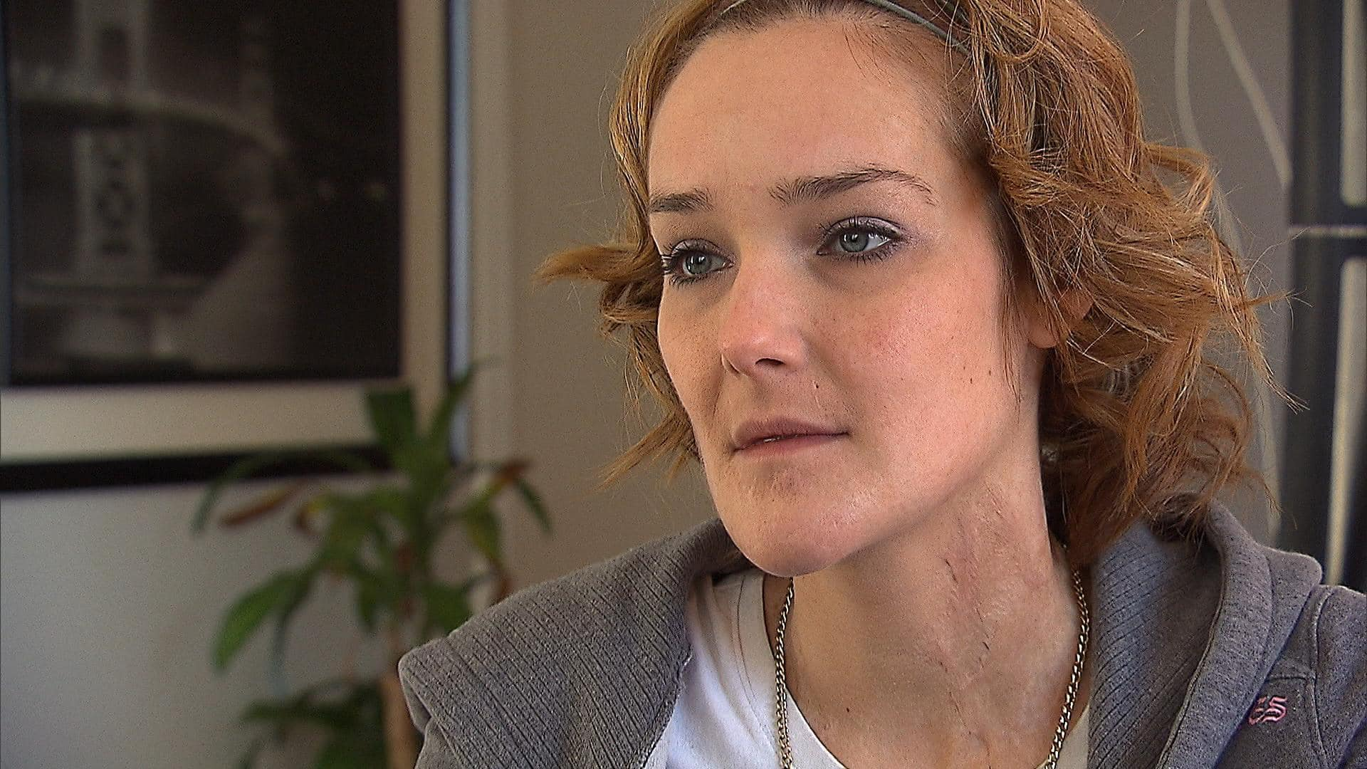 RAW | Tanya St Arnauld heals her physical and emotional scars