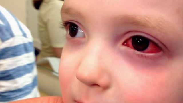 Antibiotics may not be the answer to pink eye